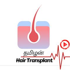 தமிழன் HT -Hair Transplant